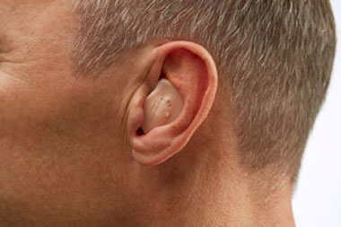 In the Ear - Hearing Aids - Nardelli Audiology